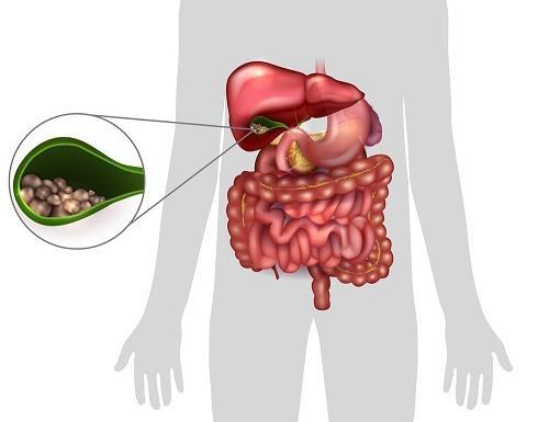 Az epehólyag betegségei - Milyen tünetek esetén gondoljon rá?