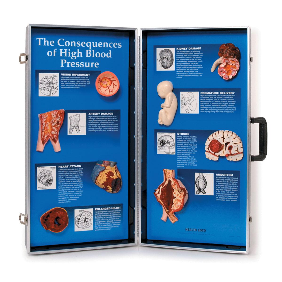 magas vérnyomás szimulátor)