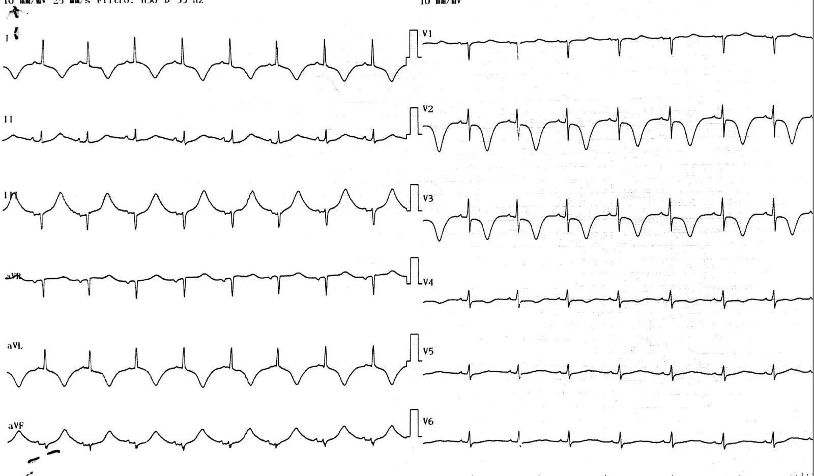 Ortosztatikus hipotenzió: okok, tünetek és kezelés - Magas vérnyomás November
