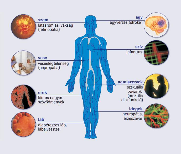 magas vérnyomás cukorbetegeknél