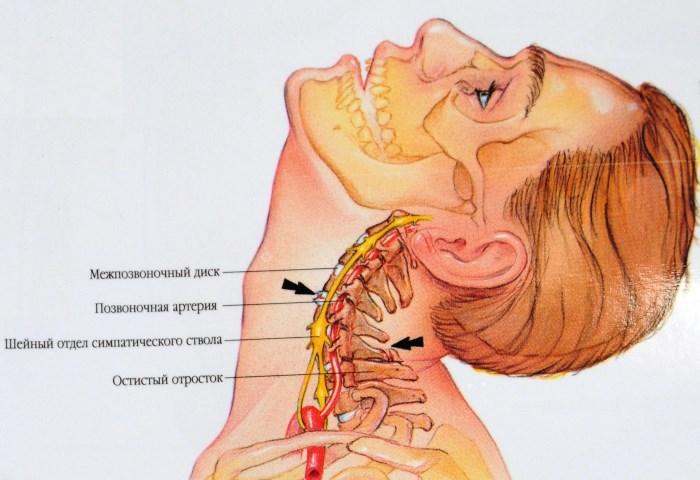 izom hipertónia gyakorlása