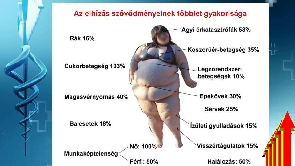 hipertónia elhízás
