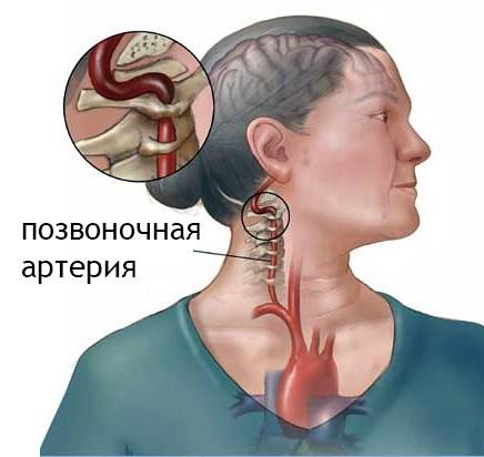 2 fokozatú magas vérnyomás leírása a magas vérnyomás 1 stádiumának okai