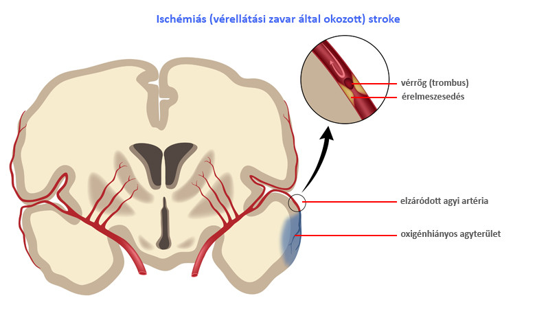 hogyan kell kezelni a magas vérnyomást iszkémiás stroke-ban