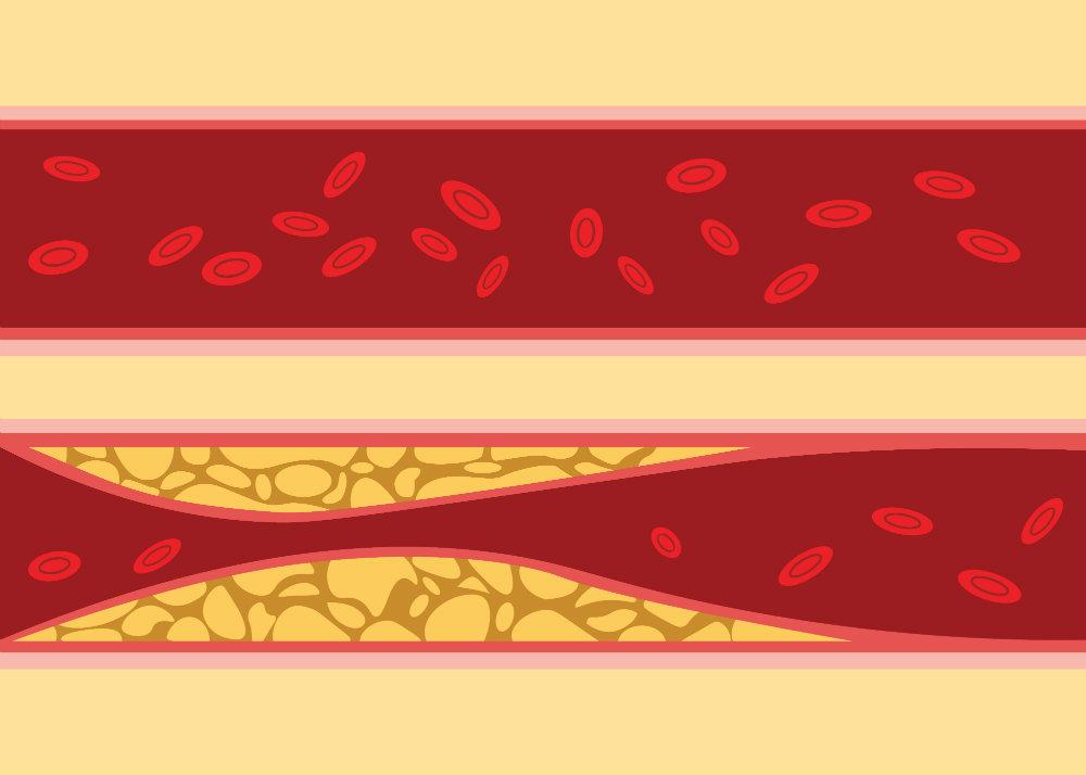 2 a magas vérnyomás egy szakasza)