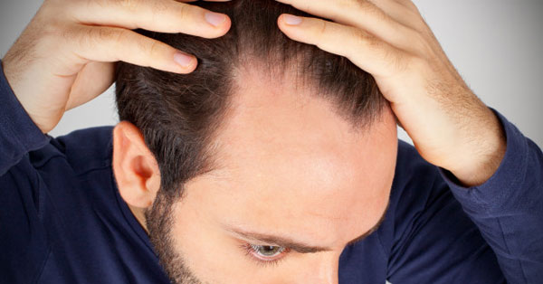 magas vérnyomás és alopecia