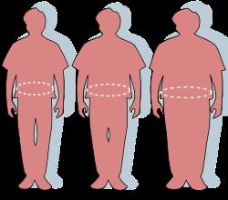 az elhízás hipertóniájának következményei