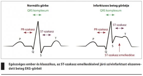 első fokú és első stádiumú magas vérnyomás)