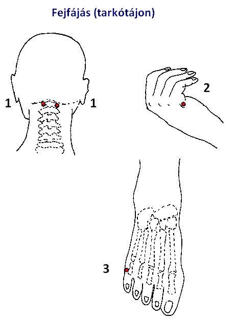 akupunktúra magas vérnyomás esetén