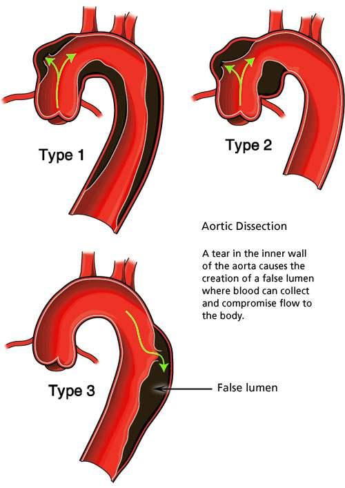az aorta megkeményedése magas vérnyomás miatt)