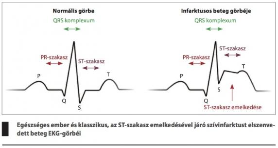 miből lehet a 3 fokozatú magas vérnyomás búzakása magas vérnyomás ellen