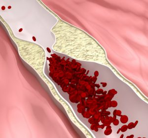 magas vérnyomás és időjárási változások ha a magas vérnyomás alatt csökken a vérnyomás