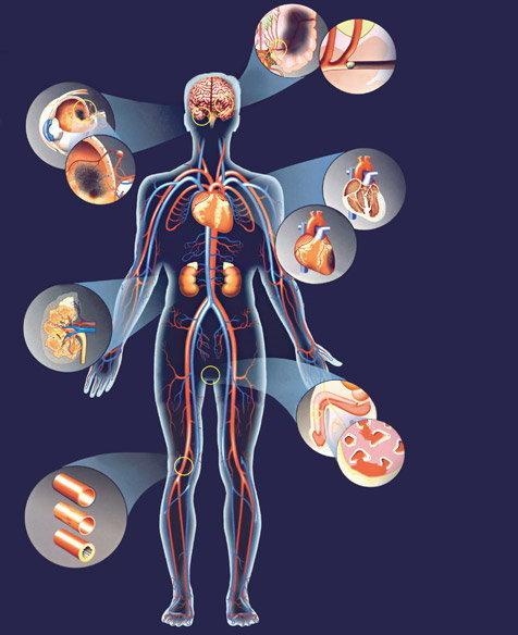 magas vérnyomás esetén az erek kitágulnak diéta a magas vérnyomásért menü egy hétig