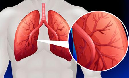 a pulmonalis keringés hipertóniájának okai