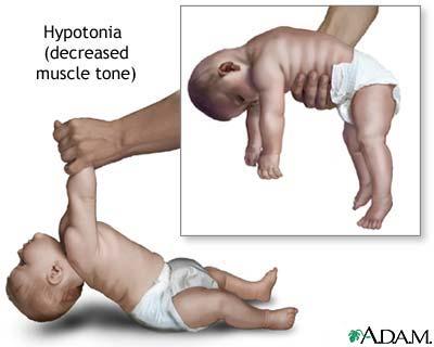 izom hipertónia és hipotenzió