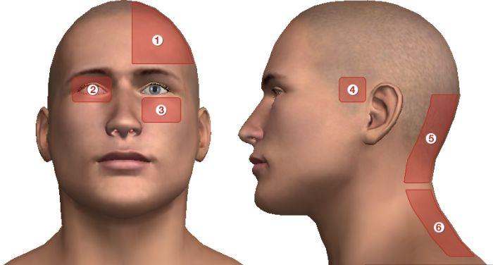 magas vérnyomással ahol a fej fáj)