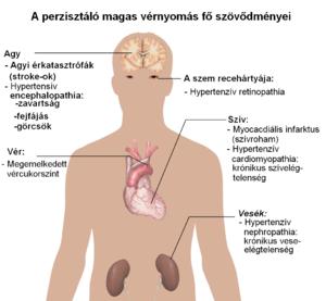 A magas vérnyomás – Biztosan kell gyógyszer? – Natúrsziget