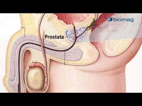 prosztatagyulladás és magas vérnyomás