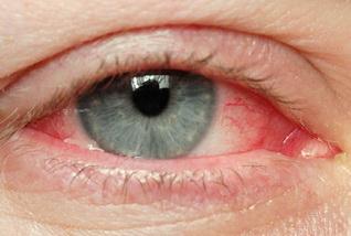 a szemek közepes vérnyomása)