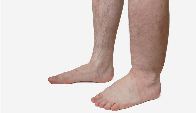 magas vérnyomás esetén a lábak duzzanata hogyan kell kezelni)