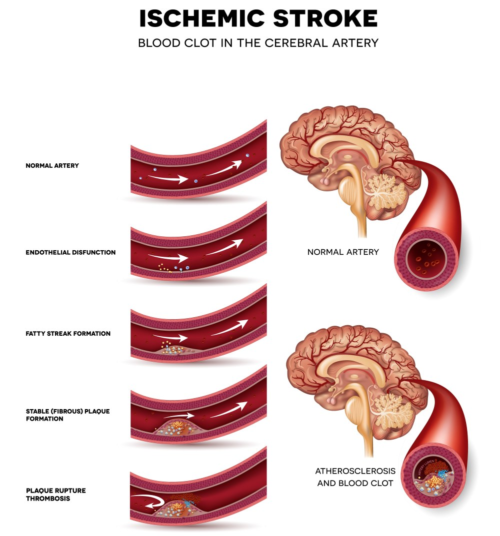 hipertónia szimulátorai