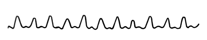 szálszerű impulzus magas vérnyomással)