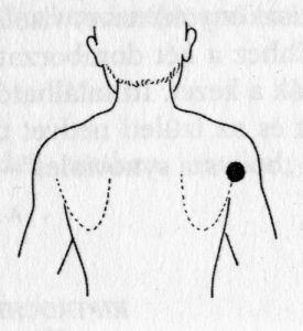 a magas vérnyomást tornával kezelni a 2 stádiumú hipertónia alkalmas