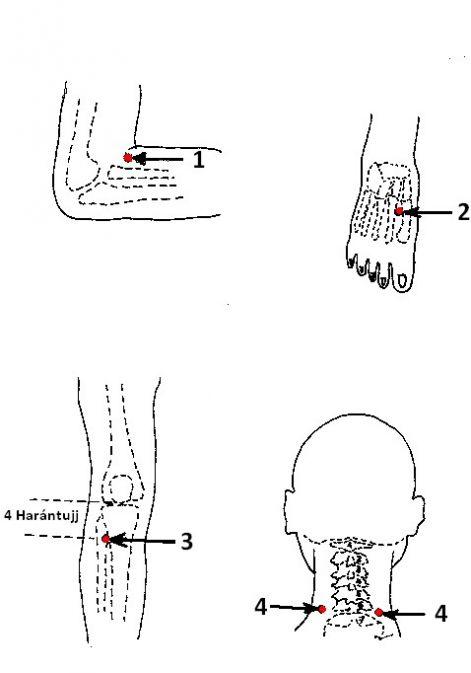 akupunktúra magas vérnyomás esetén)