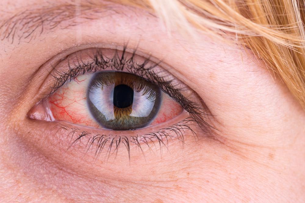 magas vérnyomású szem vérzéses kezelése