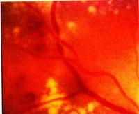 hipertónia retinopathia)