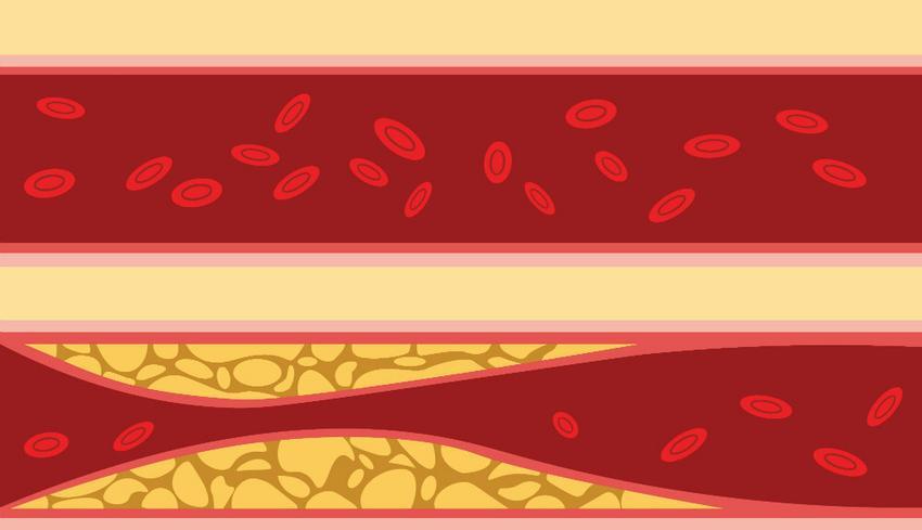 Mit jelent a biokémiai vérvizsgálat