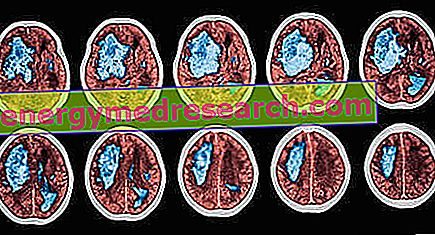 krónikus agyi magas vérnyomás)