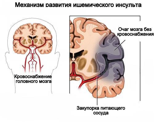 hipertónia szimulátorai)