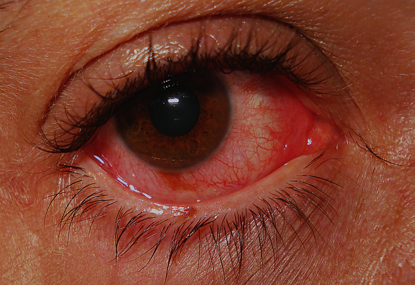 Milyen betegségek esetén alkalmazható a Valocordin? - Aranyér