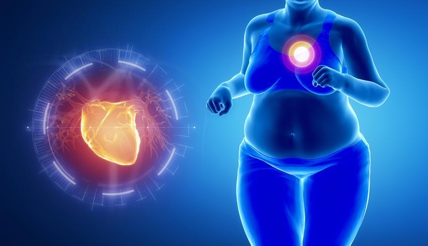 iszkémiás szívbetegség magas vérnyomás kezelése)
