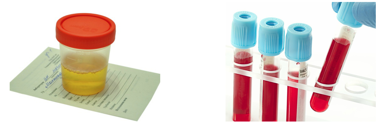 magas vérnyomás 3 evőkanál fogyatékosság)