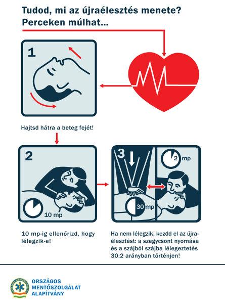újraélesztés magas vérnyomás esetén