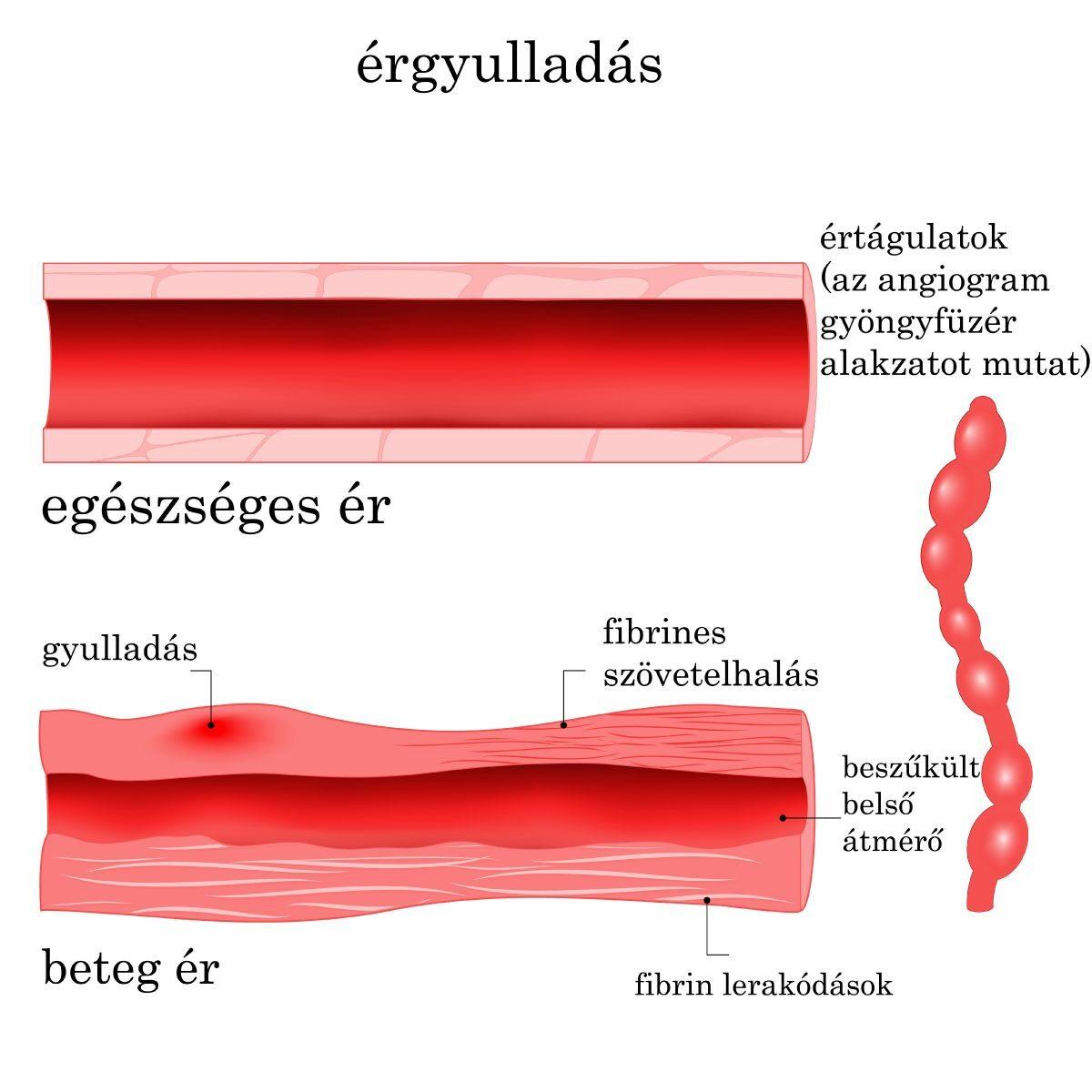érgörcs hipertónia)