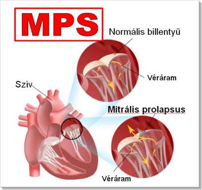 Mitralis prolapsus, magas vényomás, stressz