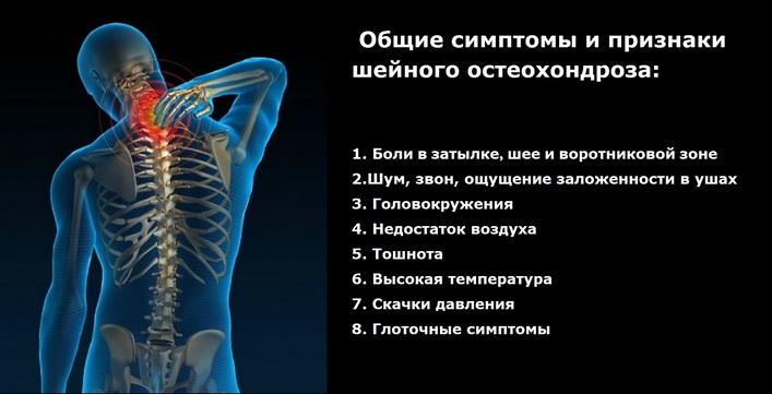 magas vérnyomás 2 fokos osteochondrosis)