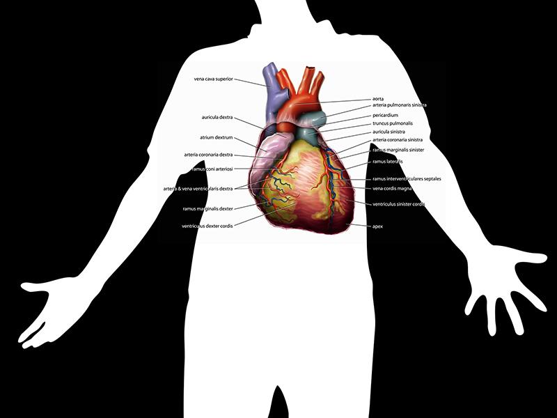 artériás hipertónia)