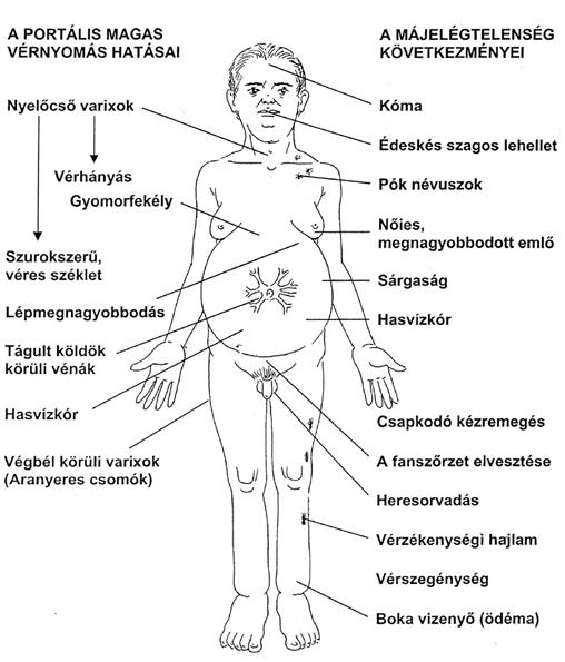 Portális hipertónia szindróma a májcirrhosisban