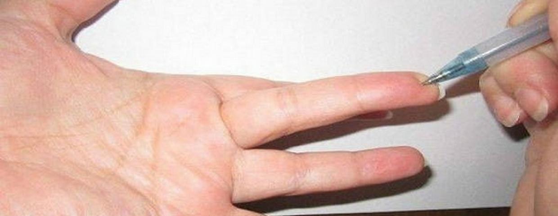 Betegség, stressz vagy koffein: mi okozza a kézremegést?
