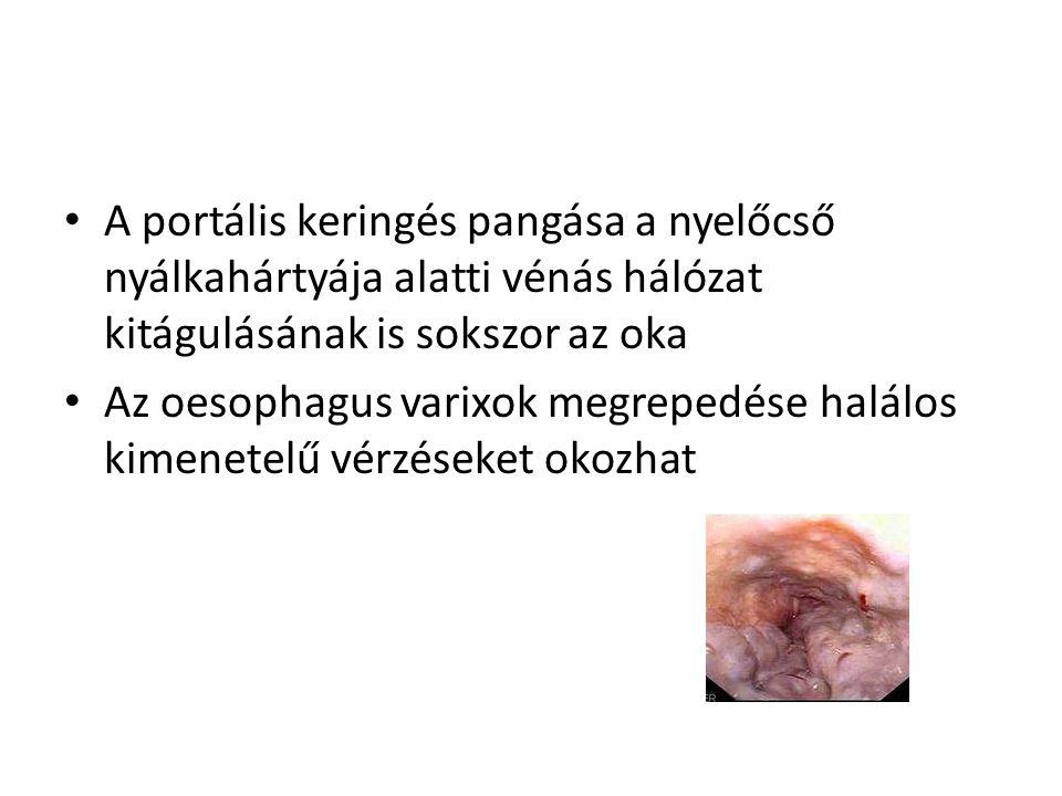 portális véna magas vérnyomás