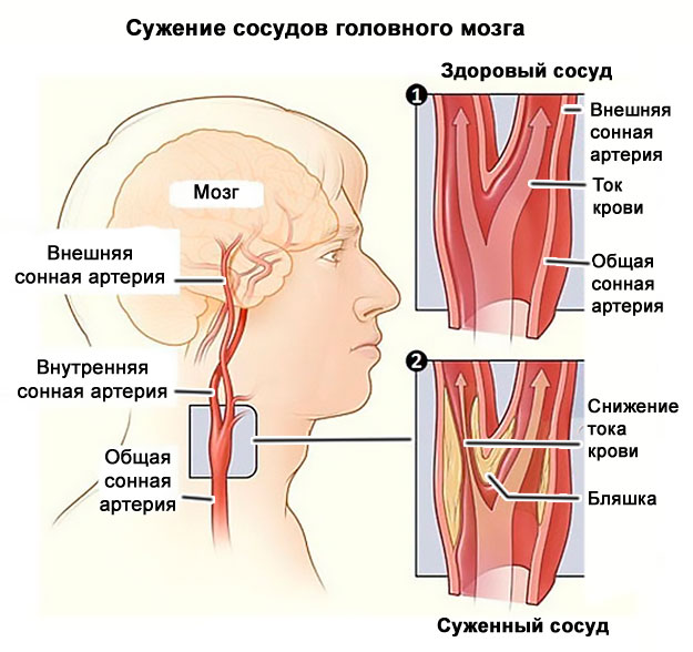 magas vérnyomás osteochondrosisból