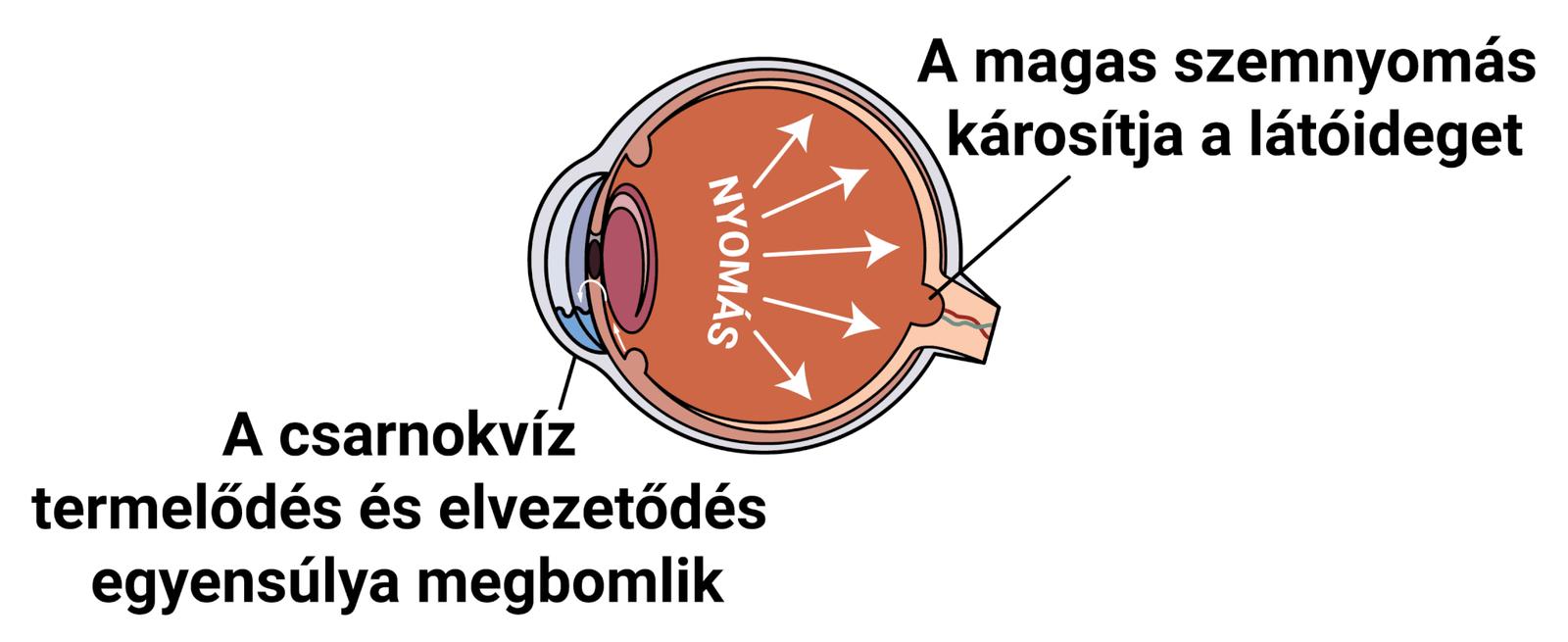 magas vérnyomás glaukóma)