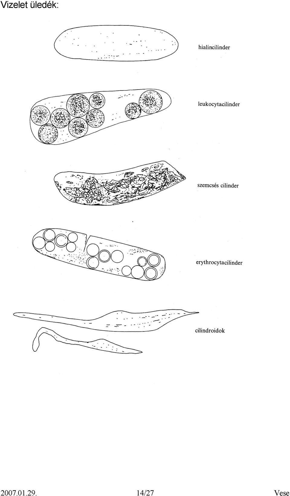 fehérje a vizelet hipertóniájában)
