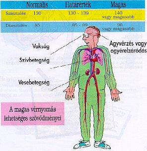 magas vérnyomás és vakság)
