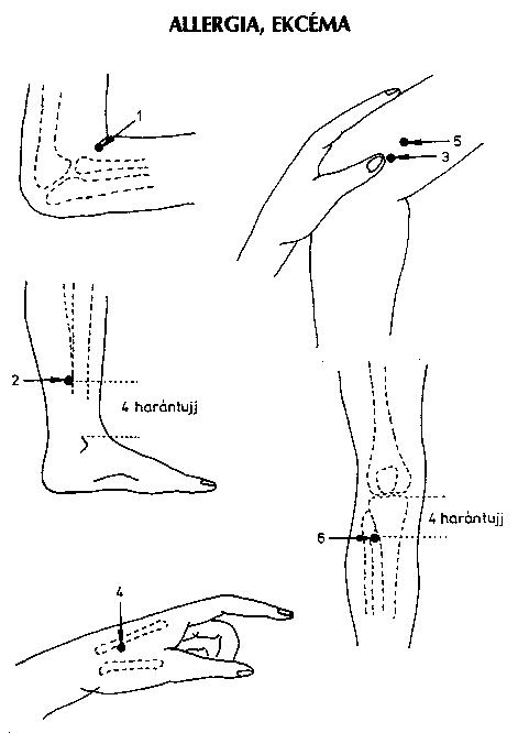 akupunktúrás pont magas vérnyomás esetén diéta és menü hipertónia esetén
