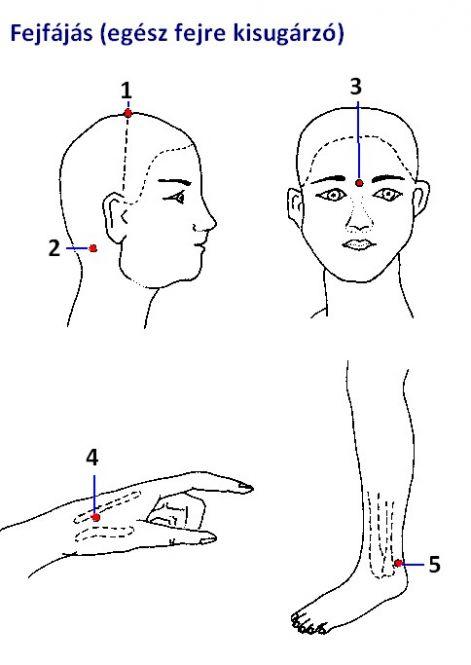 akupunktúrás magas vérnyomás hogyan lehet örökre gyógyítani a magas vérnyomást népi gyógymódokkal